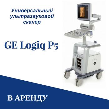 Аренда УЗИ аппарата, прокат УЗИ сканера в Минске и Беларуси дешево от компании Сонолог